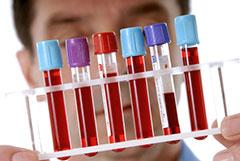 Где сдать анализ крови на сифилис