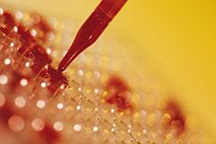 Расшифровка анализа крови на сифилис