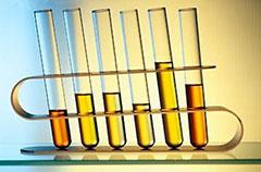 Анализ мочи на лейкоциты по Нечипоренко