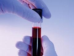 Как сдать анализ на антитела при беременности