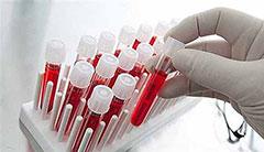 Расшифровка анализа крови на свертываемость