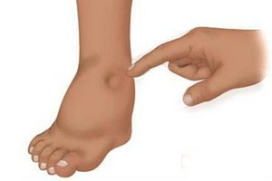 изображение отеков на ногах