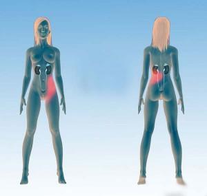 локализация боли при почечной колике