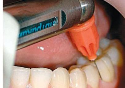 Внутрисвязочная анестезия