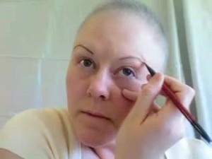 Последствия химиотерапииПоследствия химиотерапии