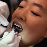 Как быстро вылечить зуб