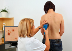 врач осматривает родинки
