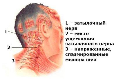 причины болей в затылке