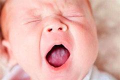Симптомы молочницы у новорожденных