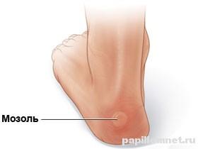 Фото одного из видов мозолей на ногах