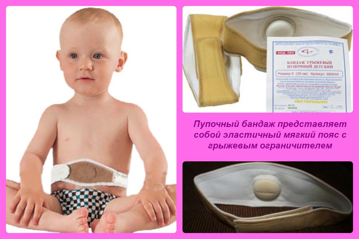 Лечение пупочной грыжи у ребенка в домашних условиях
