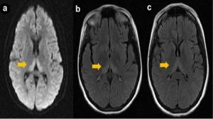 фото МРТ энцефалопатии головного мозга