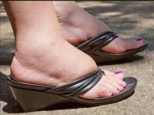 Симптомы отека ног