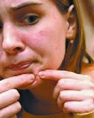 угри на лице, фото