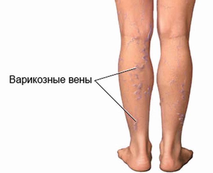 Варикоз на левой ноге