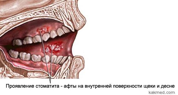 Хронический стоматит у взрослых и как лечить