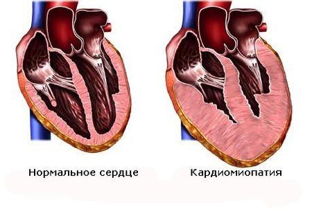 Поражение сердца, которое развивается при потреблении большого количества алкоголя