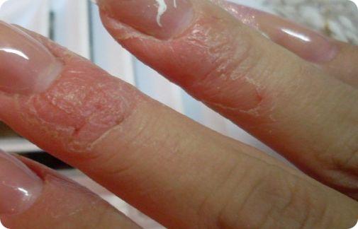 что делать при аллергии на Shellac