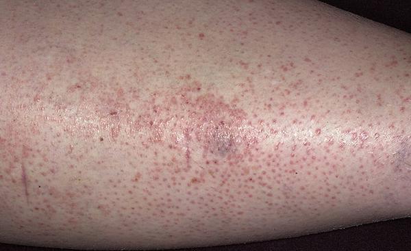 аллергия у беременных картинка