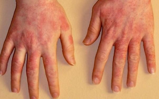на фото аллергический дерматит рук