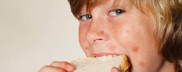 Индивидуальная непереносимость пищевых продуктов