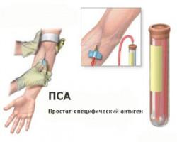 Как проходит анализ крови на ПСА