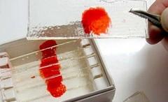 Анализ крови на тиф