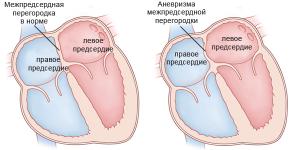 Межпредсердная перегородка в норме и с аневризмой