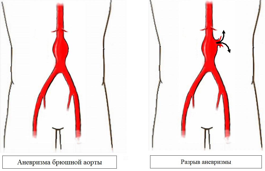 Частковий кальциноз стінок черевної аорти