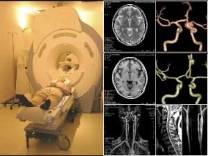 Диагностика аневризмы головного мозга