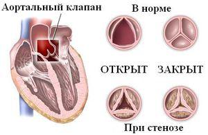 Клапан при аортальном стенозе