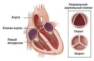 Аортальная недостаточность может также возникать от инфекции или травмы клапана
