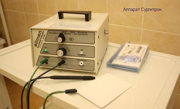 сургитрон аппарат
