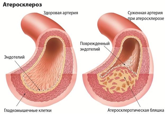 Атеросклероз артерий головного мозга.