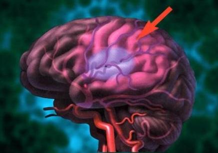 Последствия атеросклероза сосудов головного мозга.