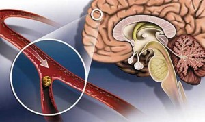 атеросклероз мозга