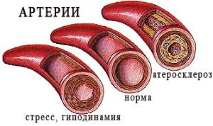 атеросклероз сосуды