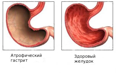 атрофический гастрит желудка