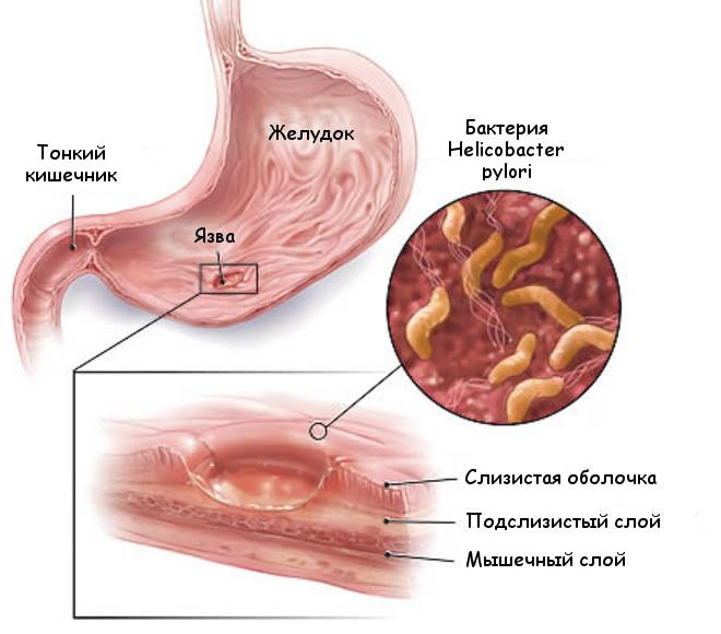 Бактерия Helicobacter pilory