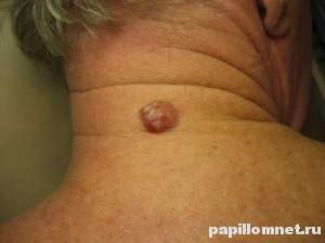 Фото базалиомы в задней части шеи