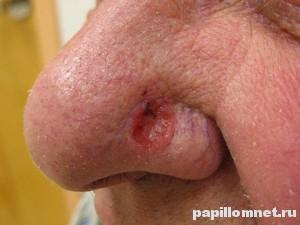 Фото базалиомы на носу