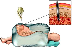 biopsiya