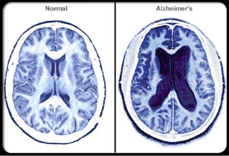 Последняя стадия Альцгеймера