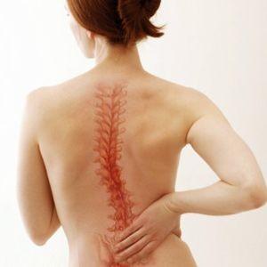 Боли в позвоночнике - один из признаков саркомы матки