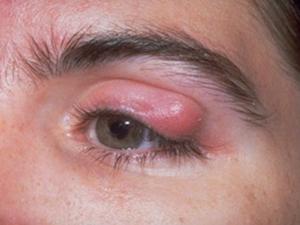 болячка на глазу
