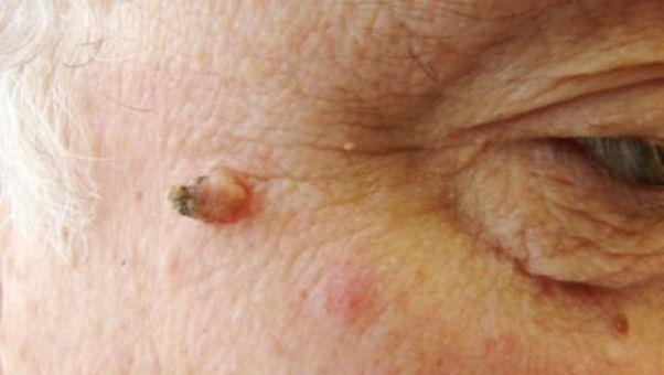 акрохорды на коже лица