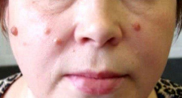 фото лицевых наростов