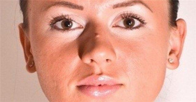 девушка с бородавкой на носу