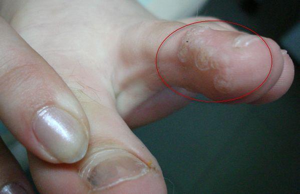 подошвенные бородавки между пальцев ног