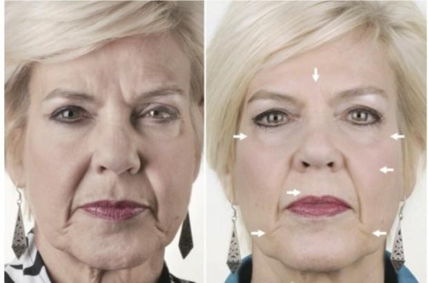 косметические процедуры 60 лет действительно есть термофутболка
